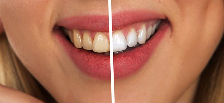 Whitening_burnside-dental