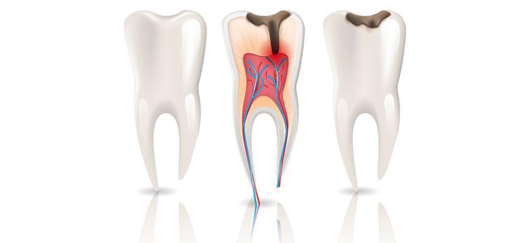 Root-Canals_burnside-dental-centre