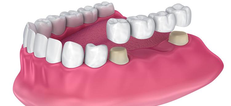 dental-Bridges_burnside-dental-centre